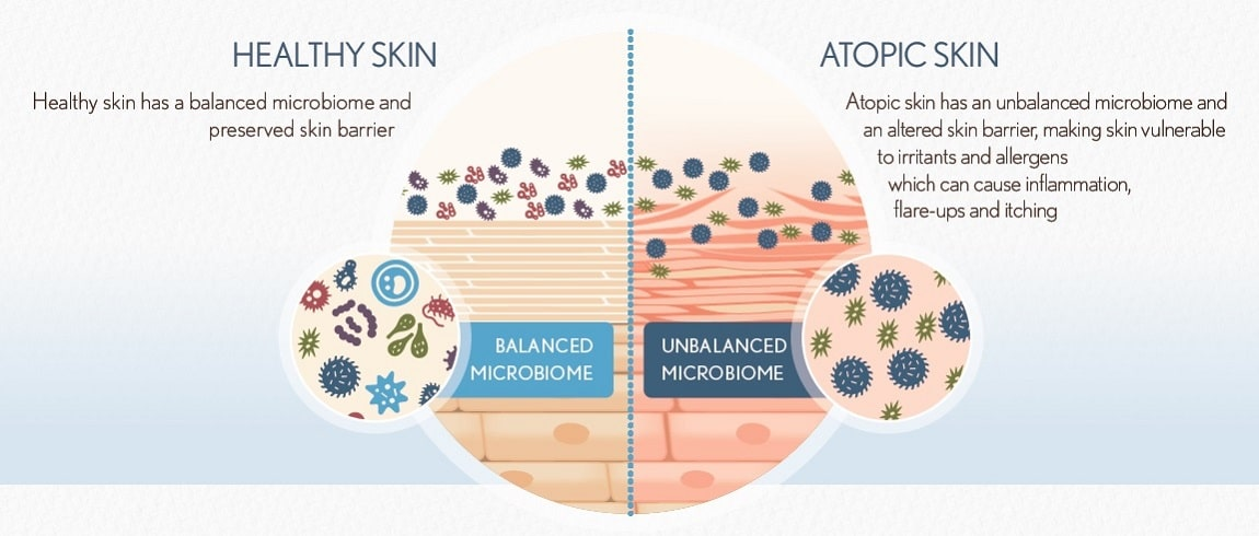 AVEENO® research on skin microbiome